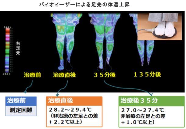 バイオイーザーによる足先の体温上昇.jpg