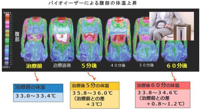 バイオイーザーによる腹部の体温上昇.jpg