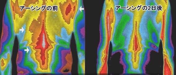 アーシングの効果「赤外線-肩と腰の炎症」