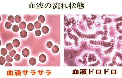 血液の流れの比較